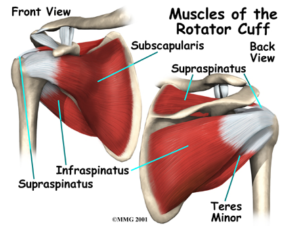 Rotator Cuff Syndrome
