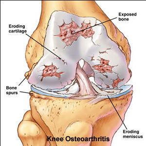 Treatments for Osteoarthritis of Knee