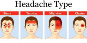 What Are The Different Types Of Headaches And Symptoms Chart?