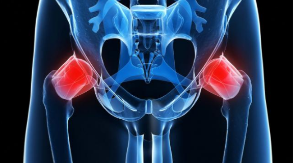 Hip Pain: Causes, Symptoms, Treatments and How To Relieve it