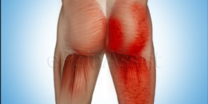 Sore Buttock Muscles Causes: Curing your buttock pain starts with finding the cause