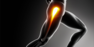 Hip Joint Pain after Running: Causes and What To Do