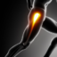 The Most Common Hip Pain Running Causes