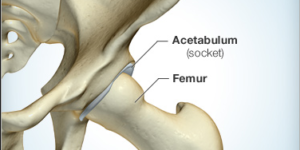 Discover The Hip Pain Symptoms and Diagnosis