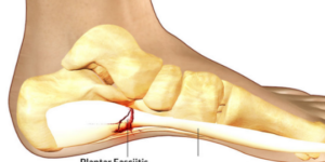 Symptoms Of Plantar Fasciitis In The Foot That May Require Immediate Attention