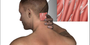 Find Out The Causes of Headaches in Back of Head
