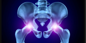 12 Worst Causes of Hip Bone Pain