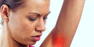 4 Common Causes of Underarm Ache