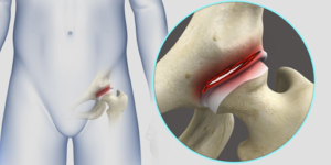 What Does a Hip Labral Tear Feel Like?