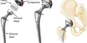 Hip Replacement Surgery Recovery: How Long Does It Take to Recover?