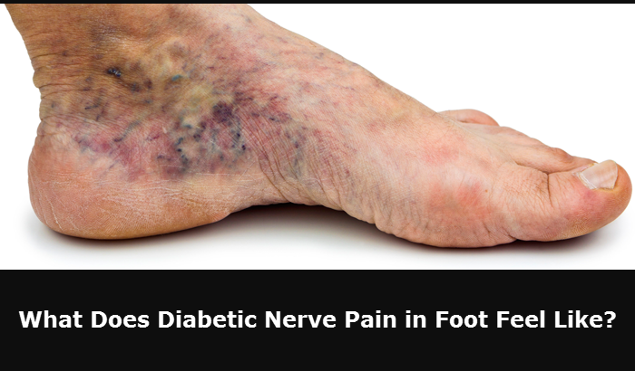 What Does Diabetic Nerve Pain in Foot Feel Like?