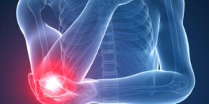 Elbow Joint Pain Reasons – Why do I have Pain in My Elbow Joints?