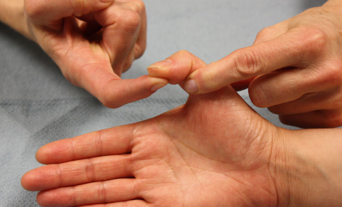 The Main 3 Causes of Sore Thumb Joints