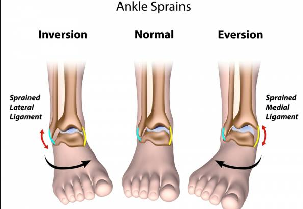 Full Guide: The 13 Exercises You Must Know For Sprained Ankle Ligaments