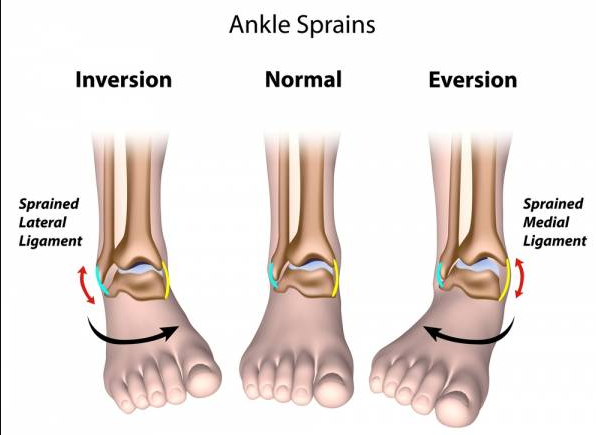 Full Guide: The 13 Exercises You Must Know For Sprained Ankle Ligaments - Body Pain Tips