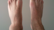 How To Tell if The Ankle is Broken or Sprained?