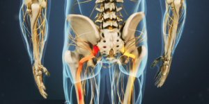 What Can I Do About Neuropathic Pain?