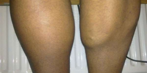 Pulled Calf Muscle: What Does a Pulled Muscle Feel Like?