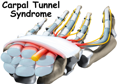 Carpal Tunnel Syndrome – All You Need To Know