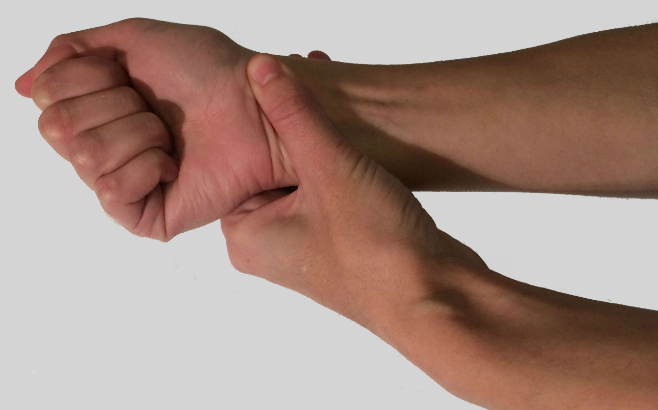 Are Carpal Tunnel Syndrome and Repetitive Stress Injury the Same Condition