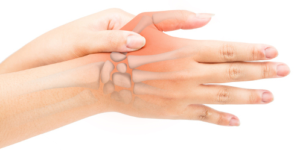 My Thumb Hurts When I Put Pressure On It or Bending – 4 Causes & Treatments