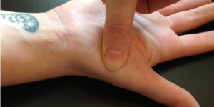Understanding The Pain at Base of Thumb Palm Side