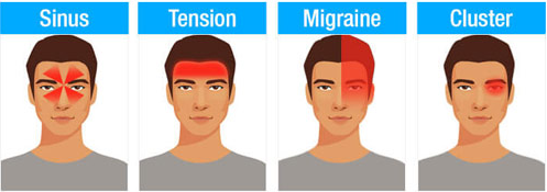 Different Types Headaches Symptoms Chart