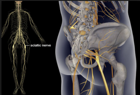 Sciatic Nerve Pain Causes and Treatments