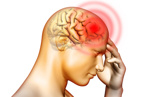 Types Of Headaches And Symptoms Chart