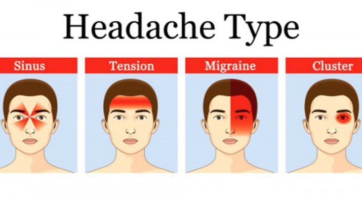 Diffe Types Of Headaches And Symptoms Chart
