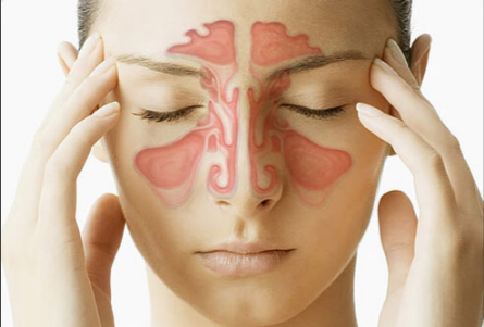 sinus headache prevention