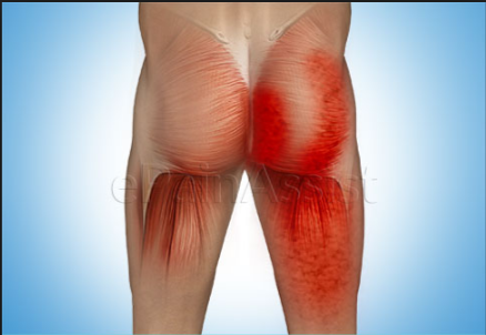 sore buttock muscles causes