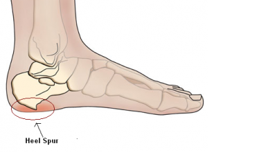What Does a Heel Spur Look Like?