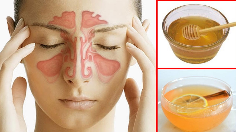 What Can I Do To Relieve My Sinus Pressure
