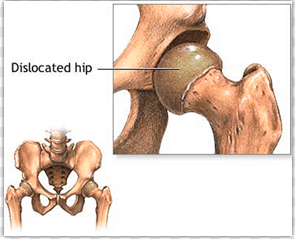Signs and symptoms of dislocated hip