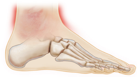 Causes of Pain in Ankle