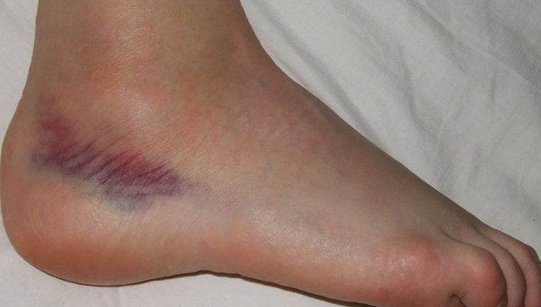 Sprained Ankle Symptoms and Treatment