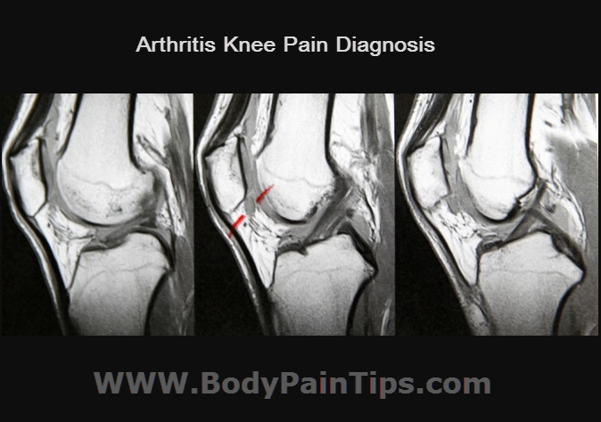 Arthritis knee pain diagnosis