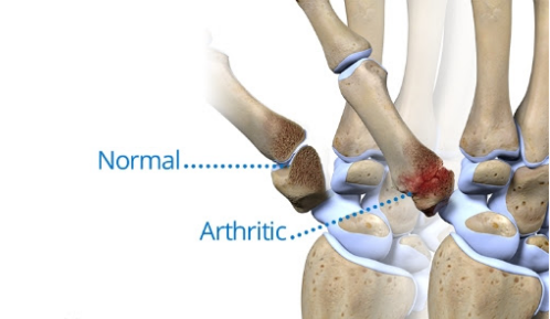 Causes of Osteoarthritis In The Knee