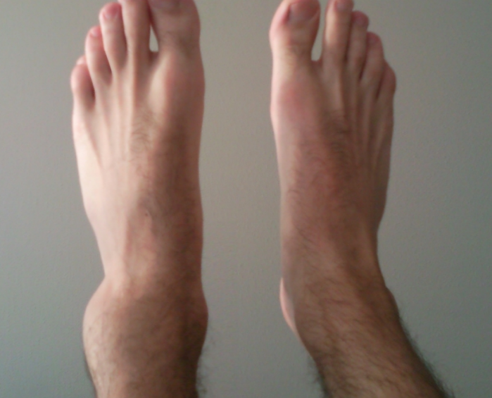 How To Tell if Ankle is Broken or Sprained