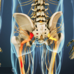 What Can I Do About Neuropathic Pain