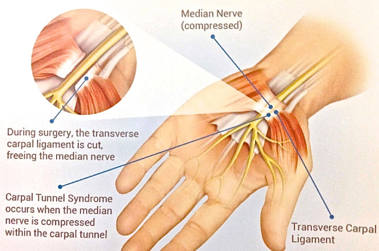Surgery for Carpal Tunnel Syndrome