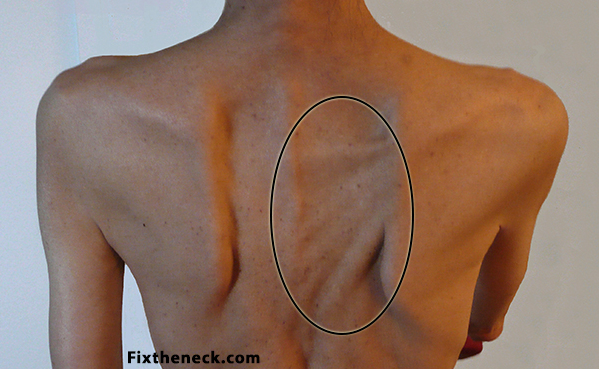 What To Do For A Pulled Muscle in Back