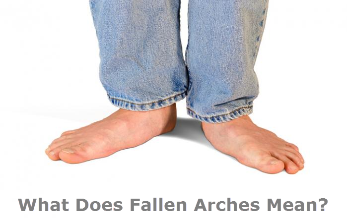 What Does Fallen Arches Mean