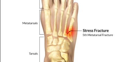 What Does a Stress Fracture in The Foot Feel Like