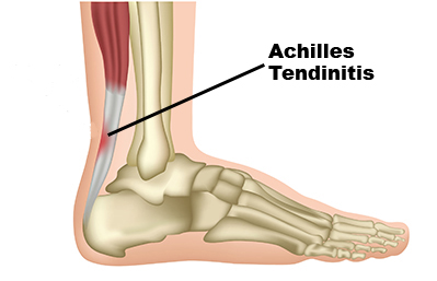 What Causes Pain in The Back of Your Heel, Achilles tendinitis
