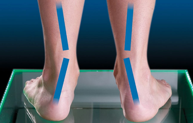 What Causes Pain in The Back of Your Heel, Overpronation