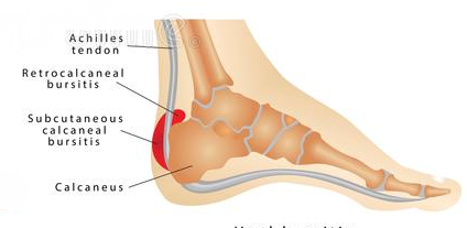 What Causes Pain in The Back of Your Heel, Retrocalcaneal bursitis