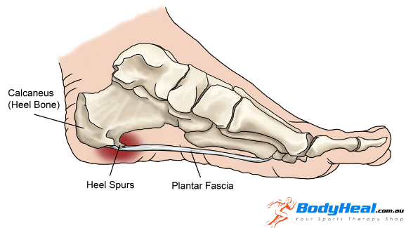 What Causes Pain in The Back of Your Heel, heel spurs