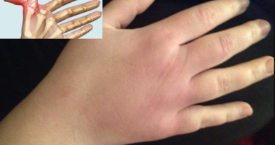 broken knuckle symptoms